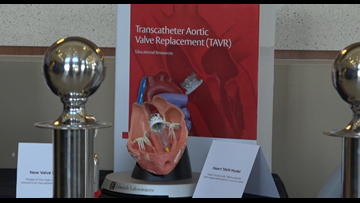 Brazos Valley hospital first to offer alternative to open heart surgery in area